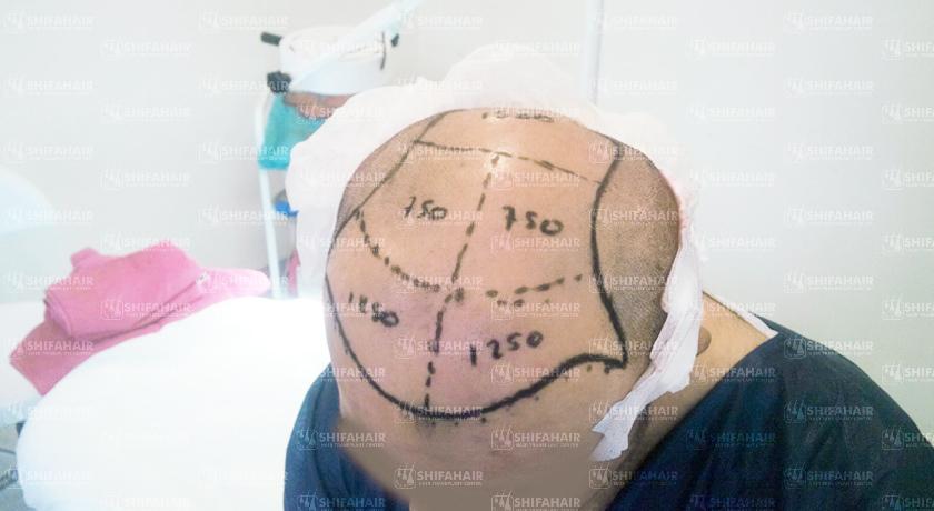 تجارب زراعة الشعر